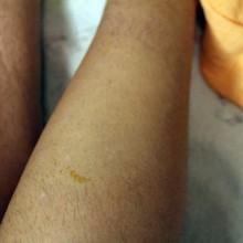 Foto vom gewachsten Bein.